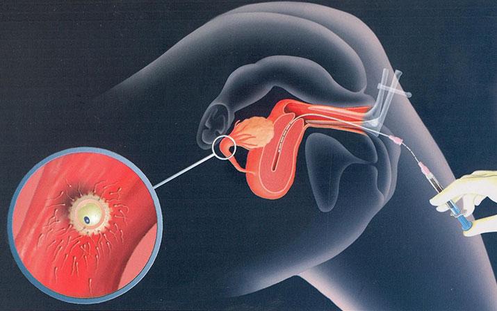 Ввод спермы для зачатия самостоятельно